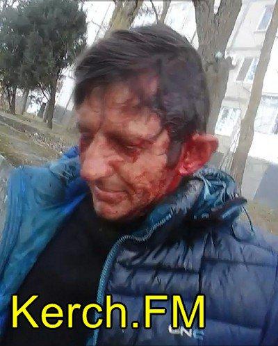ВКрыму бойцы «Самообороны» избили 2 человек при «задержании»